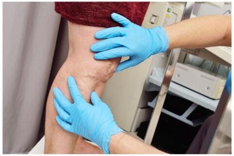 Diagnostyka układu żylnego